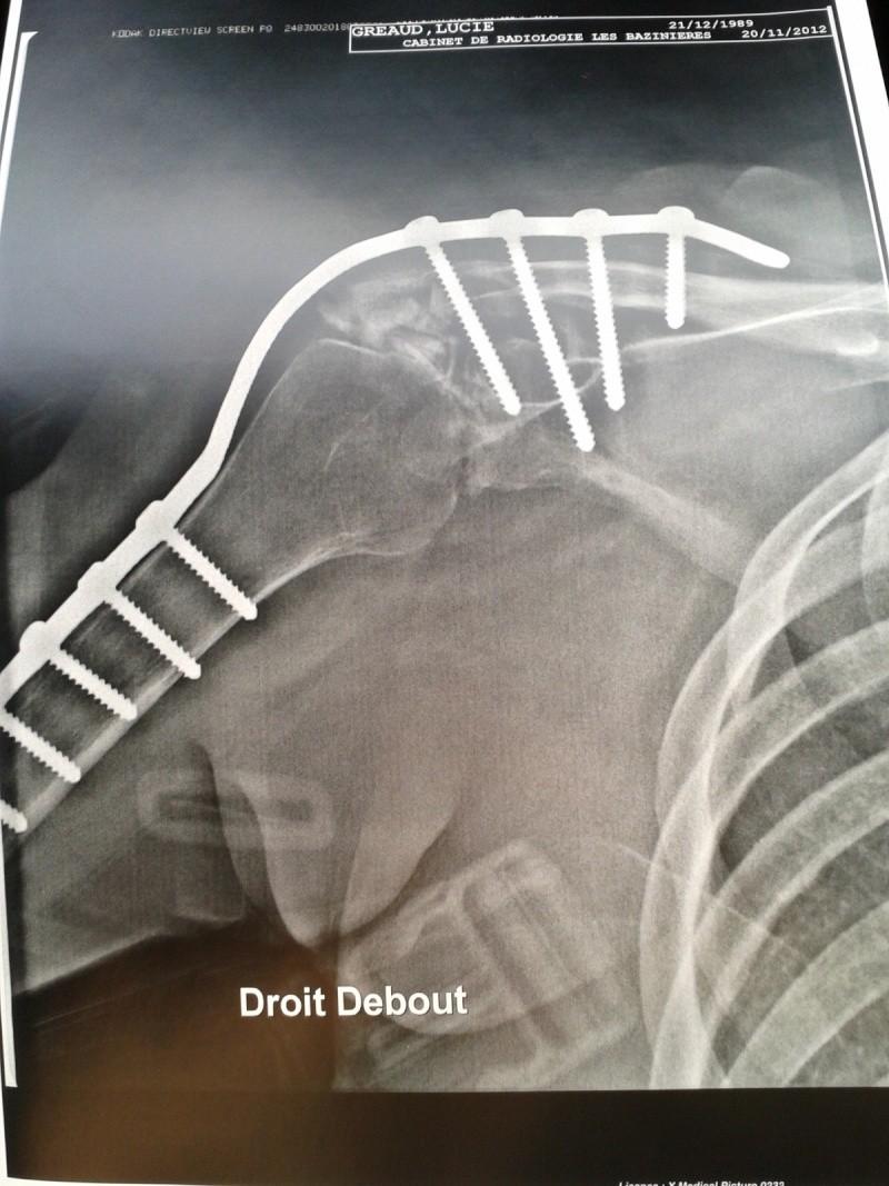 Ma vie depuis l'accidents 2012-110