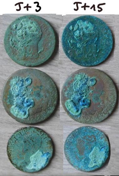 Maladie du bronze et sesquicarbonate de sodium J_plus11
