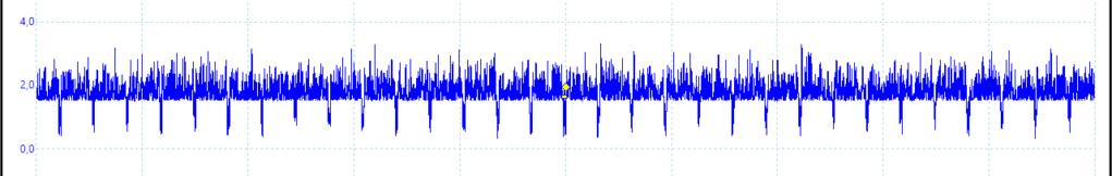 [WIP 60%] Normaliser un signal vidéo Sycnhr10