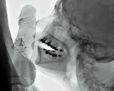 Alain Duménieu / Jean-Yves Amir _ 3D Kiss210