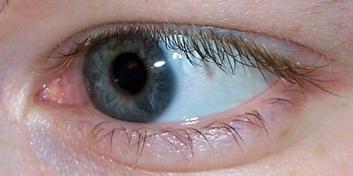 vos yeux! ( attention âmes sensibles: oeil en gros plan ^^) - Page 2 100_6911