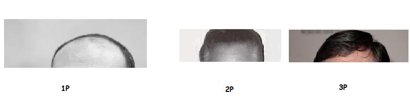 [LIGUE GAMOPAT J4] LE CEKIDONC? J410