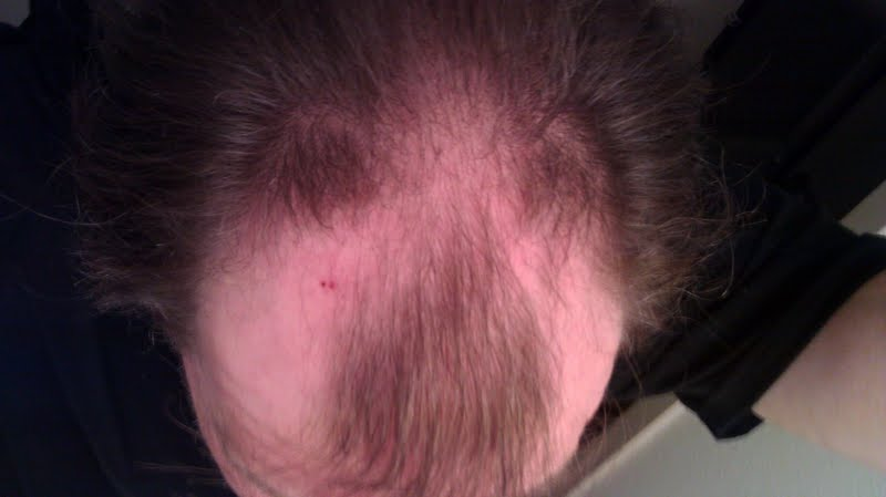 Grow New Hair! (The original Papilla Power??) - Page 19 Dec-2012