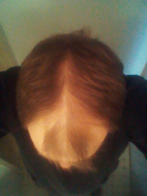 Grow New Hair! (The original Papilla Power??) - Page 19 Dec-2013
