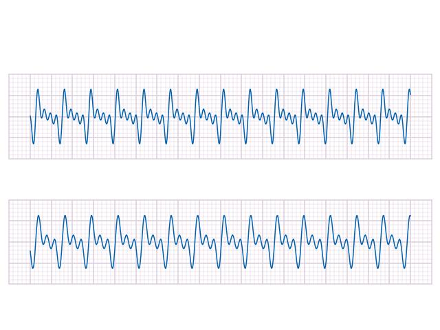 Gnuplot : papier millimétré Scale_10