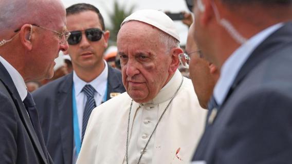 Papa Francesco si è fatto un occhio nero! Papafe10