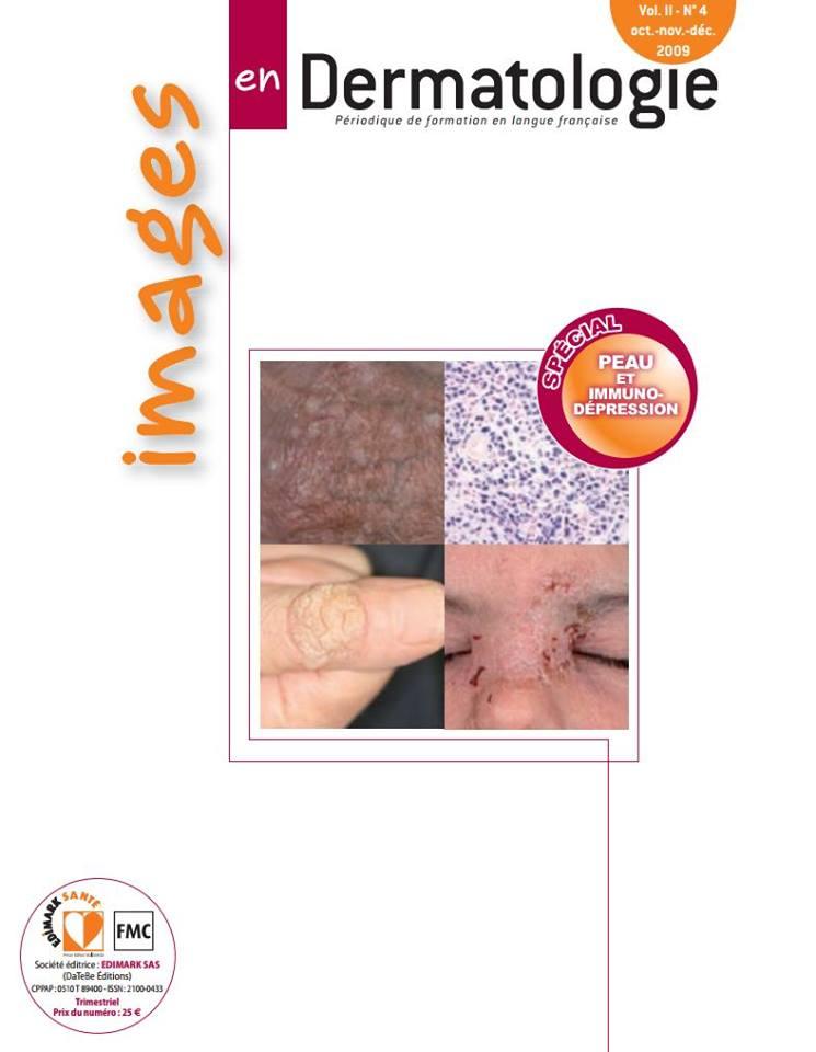 Images en Dermatologie /N° 4 oct.-nov.-déc. 2009 21462710