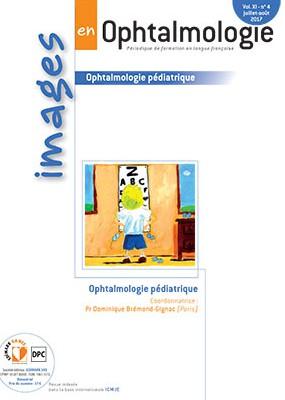 Images en Ophtalmologie / N° 4 / août 2017 Hight_20