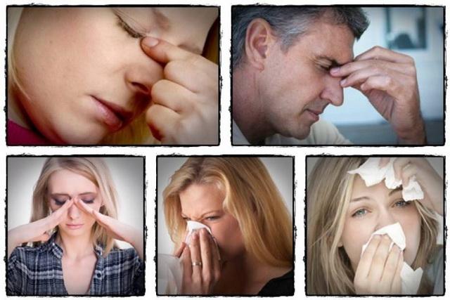 Alergija Nos-pr10