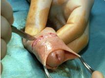 La fin de la circoncision ? - Page 3 Circon10