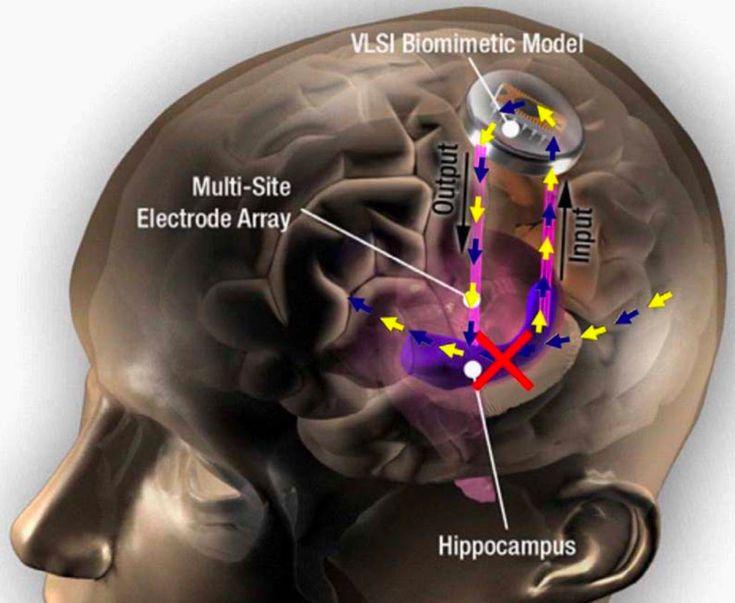 В DARPA протестировали нейроимплант - усилитель памяти 12f6ff10