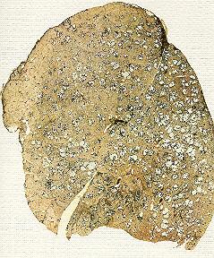 Emphysème (centro-lobulaire,paraseptal,paracicatriciel ,pan-lobulaire ) Emphys10