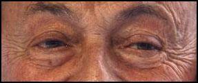 T'as d'beaux yeux tu sais!!! (série 1) - Page 65 Yeux11