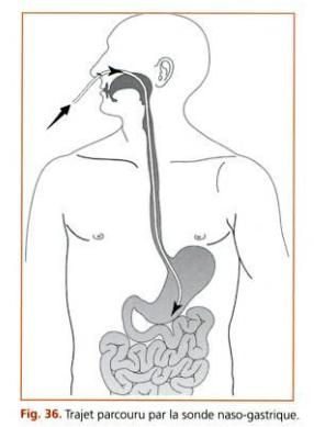 [astuce]:comment maîtriser 04 gestes techniques indispensables en gastrologie pour l'étudiant en médecine ? Fvbb10
