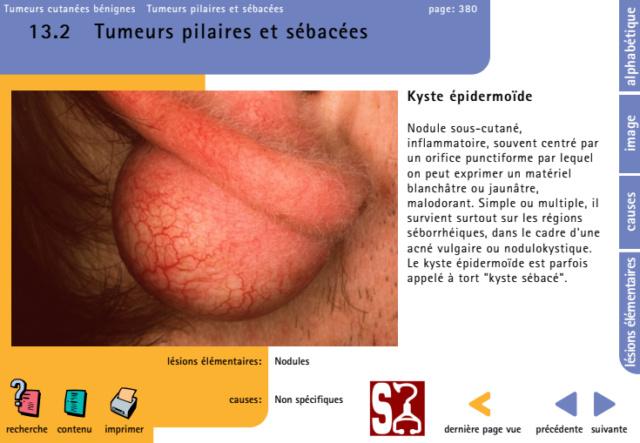 [dermatologie]: ATlAS DE DERMATOLOGIE PDF GRATUIT - Page 2 Ssssss10