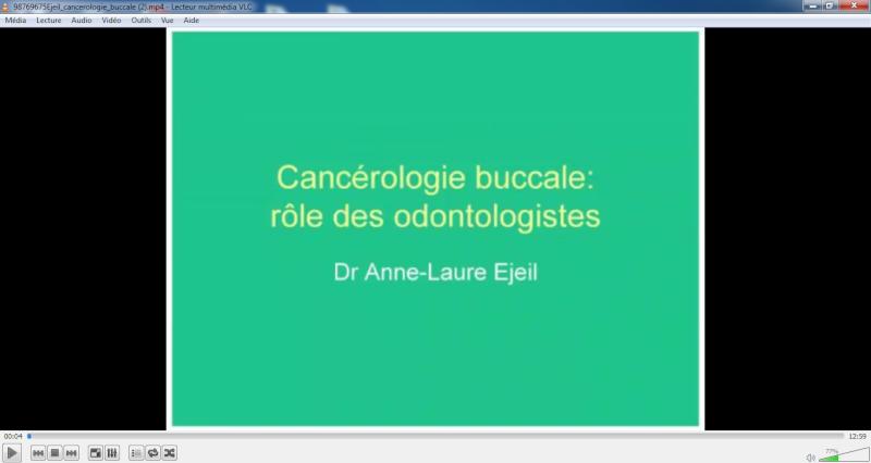 Cancérologie buccale : Rôle des odontologistes Sans_t10