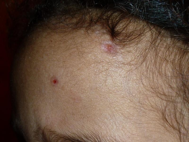varicelle et cicatrice P1030410