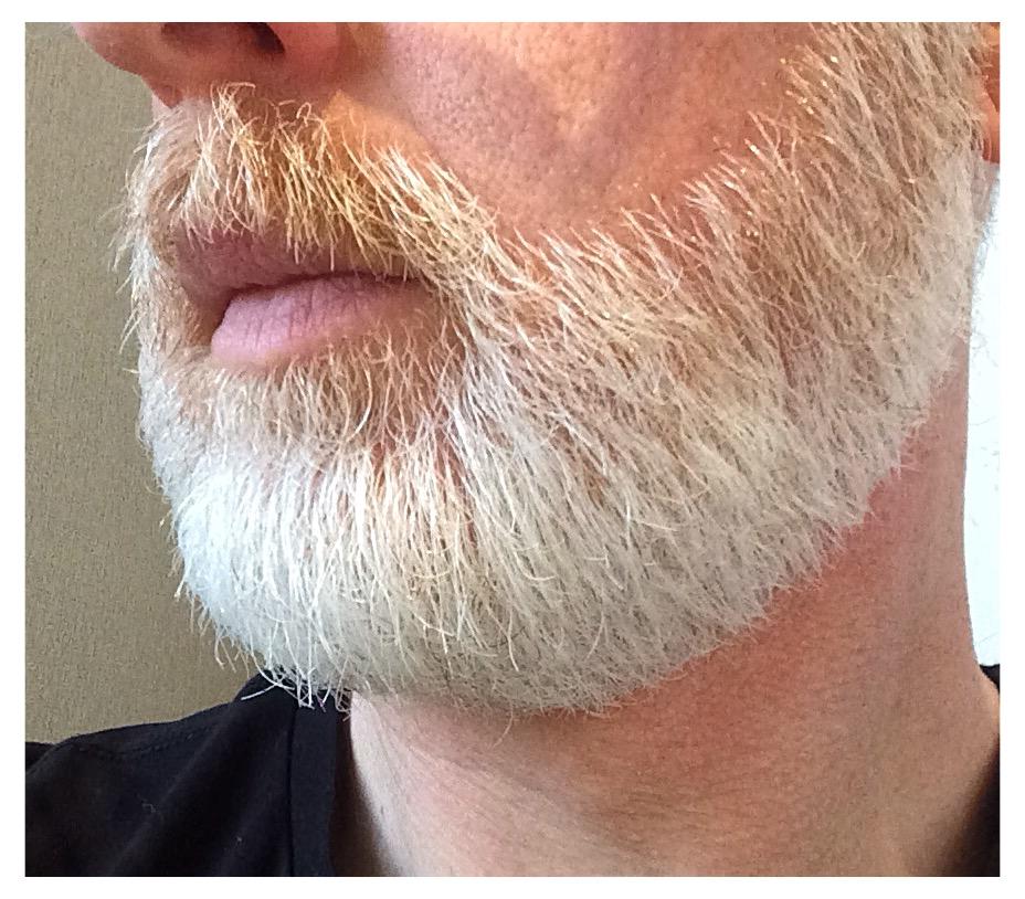 Quel type de barbe? ou de moustache? - Page 3 B5a90410
