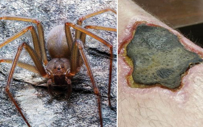 Nécrose et amputation: ne vous fiez pas à la petite taille de cette nouvelle araignée 115