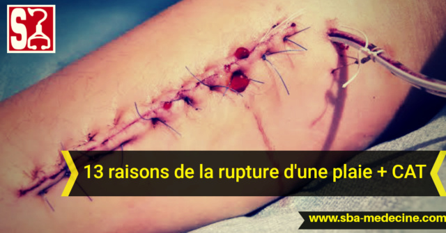 >>astuces médecine pratique 20200910
