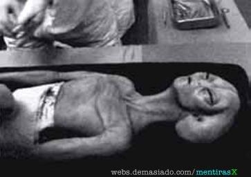 Voici quelques photos de l'alien autopsié Sans_t11