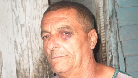Policías golpean salvajemente a detenido Anacle10