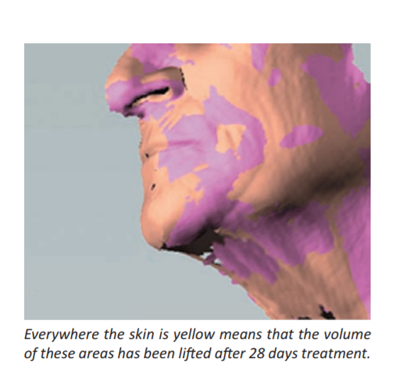 LAKESIS - лифтинг, четкий овал лица - аналог Сепилифта. А также этот актив для роста ресниц, бровей и волос! Lakesi15