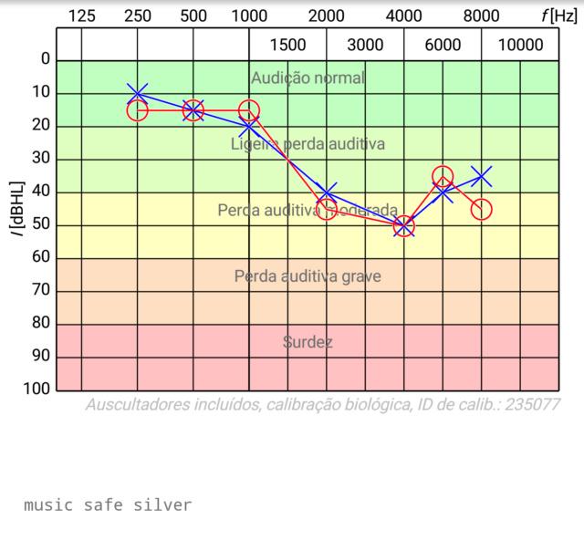 Review:  Protetor auricular - Etymotic, ProGuard, MusicSafePro Alpline e os baratezas... Audio_15