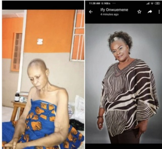 Popular Nollywood Actress, Down With Cancer, In Need Of Urgent Help 2-1810