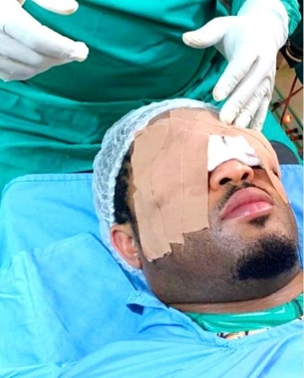 Veteran Actor Mike Ezuruonye Lands In Surgery Following Strange Eye Growth Mike19