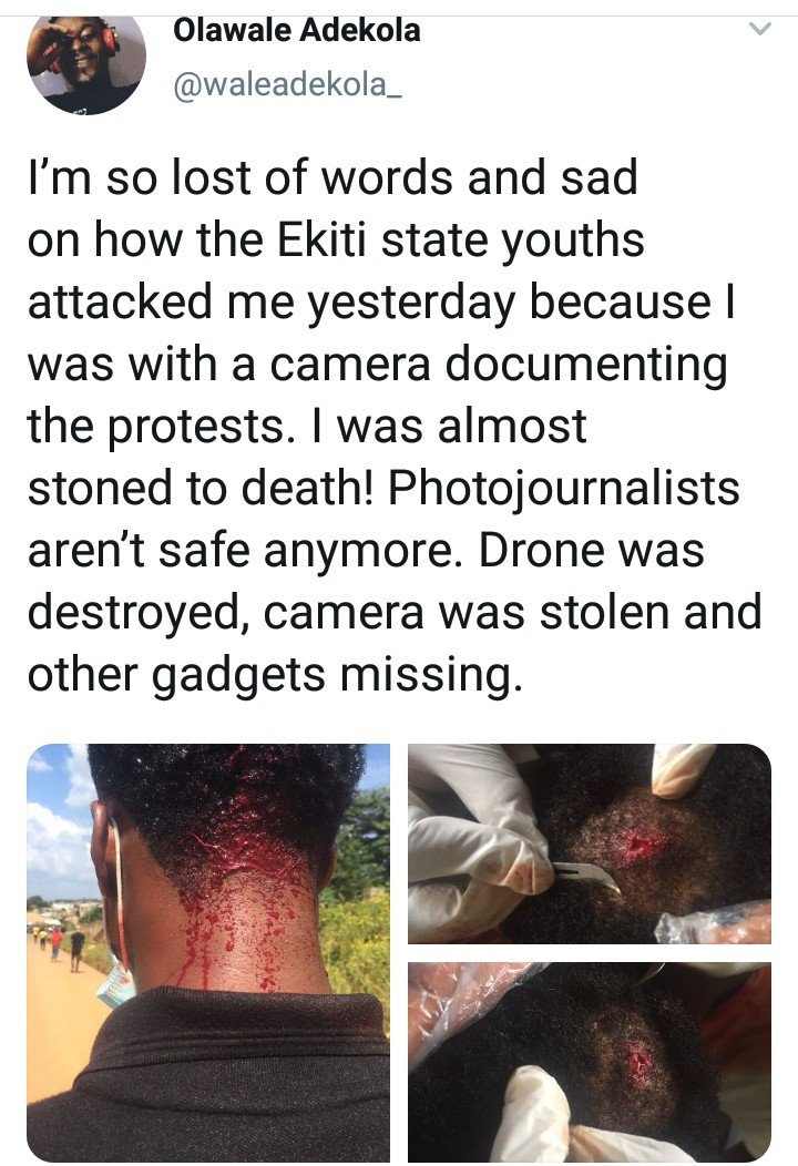 Photojournalist Reveals He Was Attacked By Ekiti #Endsars Protesters, Leaving Him With A Head Injury Photoj10