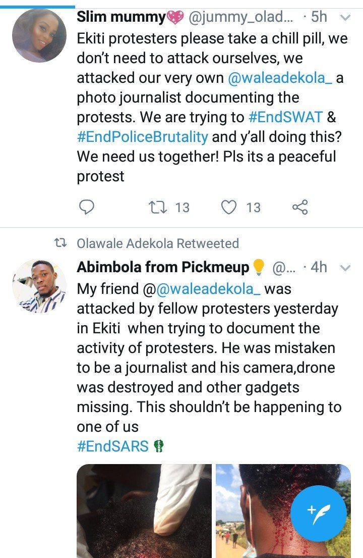 Photojournalist Reveals He Was Attacked By Ekiti #Endsars Protesters, Leaving Him With A Head Injury Photoj11
