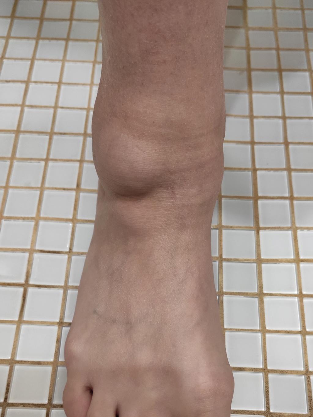 Реактивный артрит при саркоидозе Img_2013