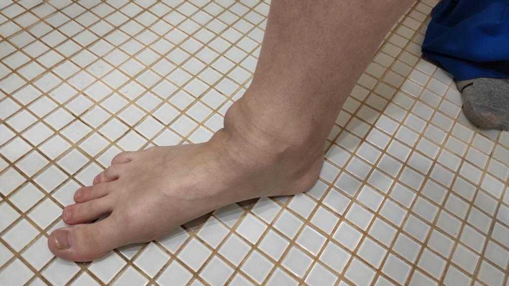 Реактивный артрит при саркоидозе Img_2014