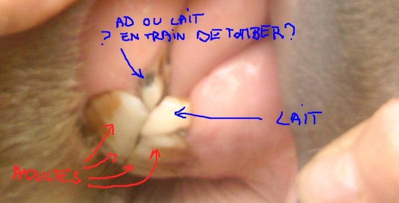 Le post du pipi orange et des dents lait... 47679710