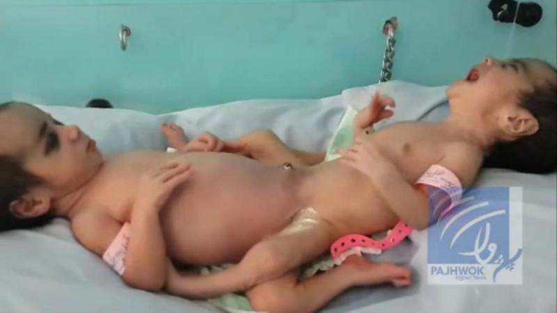 Des bébés siamois (Ayesha et Sidiqa) séparés avec succès à Kaboul 66976310