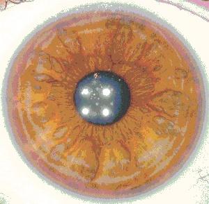 L'IRIDOLOGIE : tout sur le couleur de vos yeux 3a_bmp10