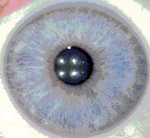 L'IRIDOLOGIE : tout sur le couleur de vos yeux 4a_bmp10
