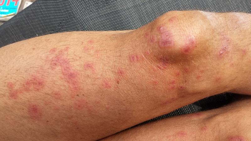 allergie importante au foin (humain)  20150610
