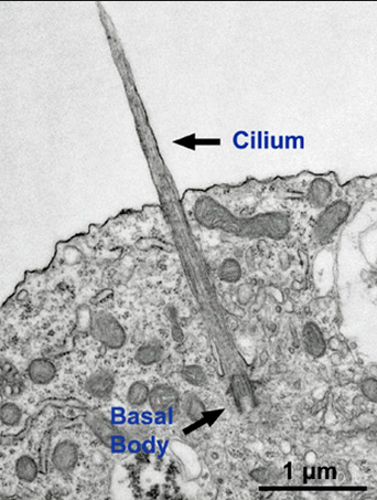 Primary Cilium a Cell's Antenna or Its Brain Neuron10
