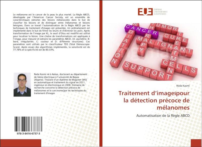 Détection précoce de mélanomes: automatisation de la règle ABCD  (livre)  par Reda Kasmi Redabo10