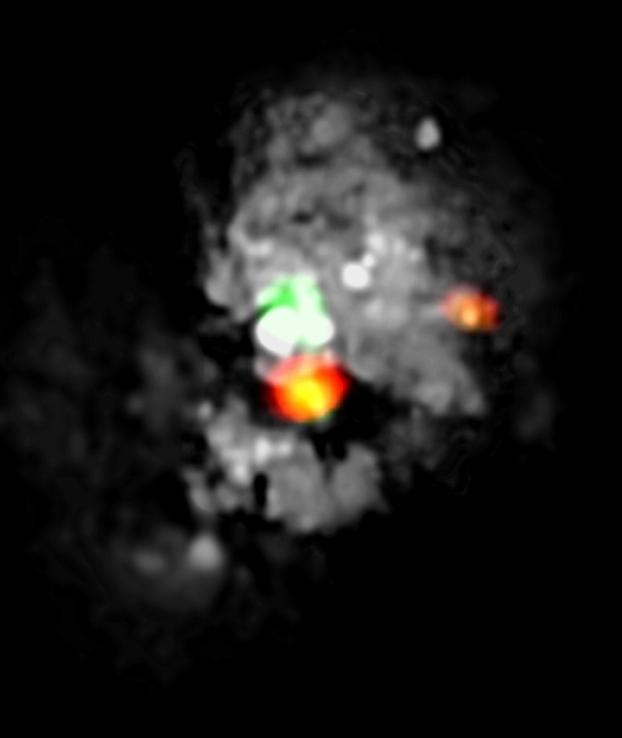 NOEMA, le radiotélescope millimétrique le plus puissant de l'hémisphère Nord, entre en service Medusa10