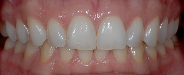 Santé Buco dentaire : quotidien et terrain. Genciv10
