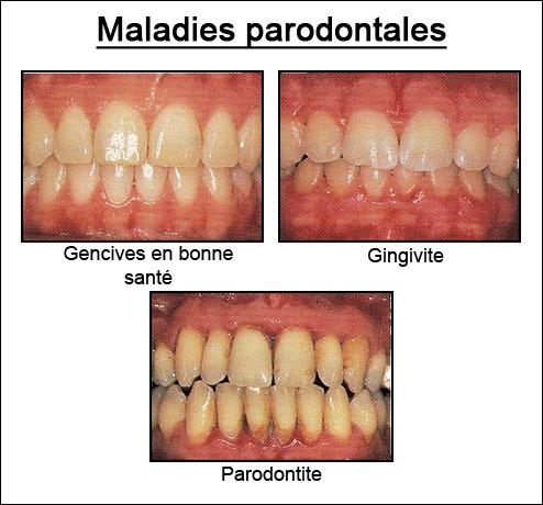 Santé Buco dentaire : quotidien et terrain. Gingiv10