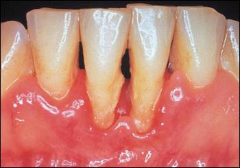 Santé Buco dentaire : quotidien et terrain. Parodo10