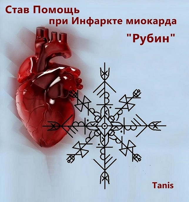 "Став Помощь при Инфаркте миокарда ""Рубин"" . Автор Tanis Ea_ea_13"