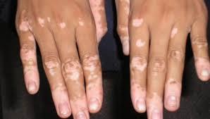 Tunisie: Traitement de la maladie de Vitiligo - Un chercheur tunisien conçoit un traitement Brass11