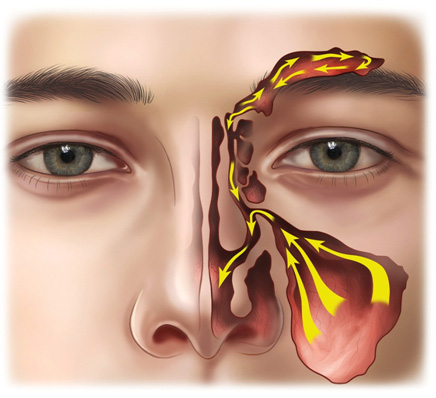 علاج التهاب الجيوب الأنفية الحادة Ou-oau10