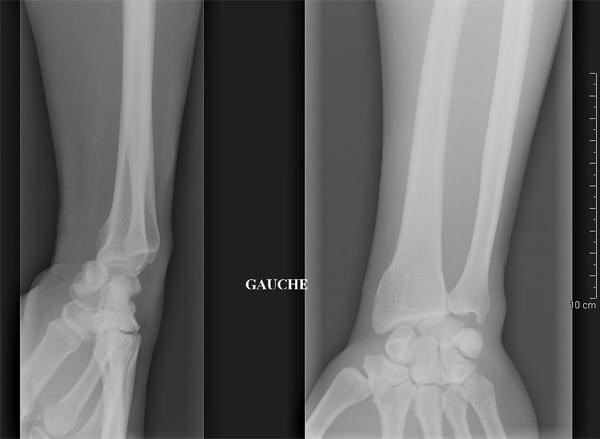 cas clinique traumato:traumatisme du poignet 20090111