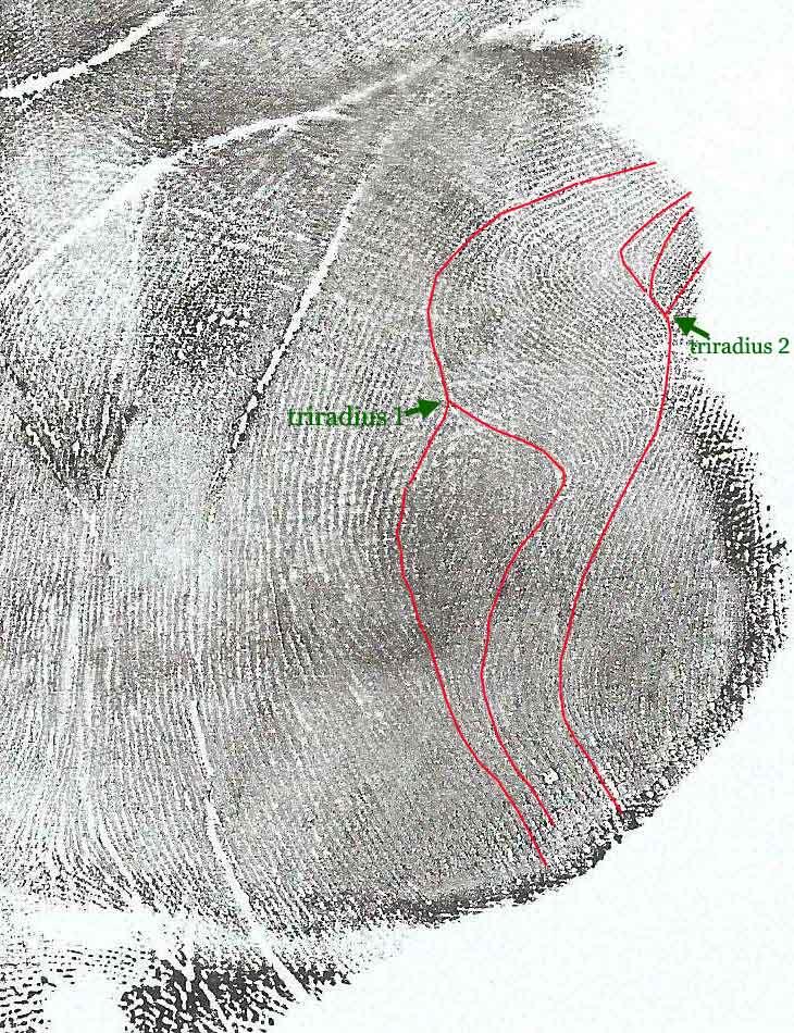 Two arches on Venus mount? Venus-11